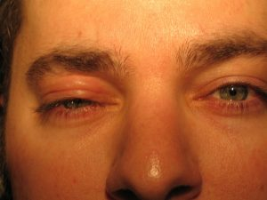 Allergia gyógyítása